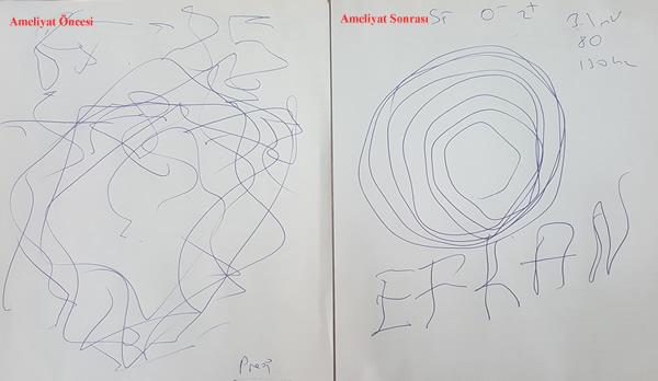 Beyin Pili ameliyatı yaptığımız bir hastamızın ameliyat öncesi ve sonrası çizimleri